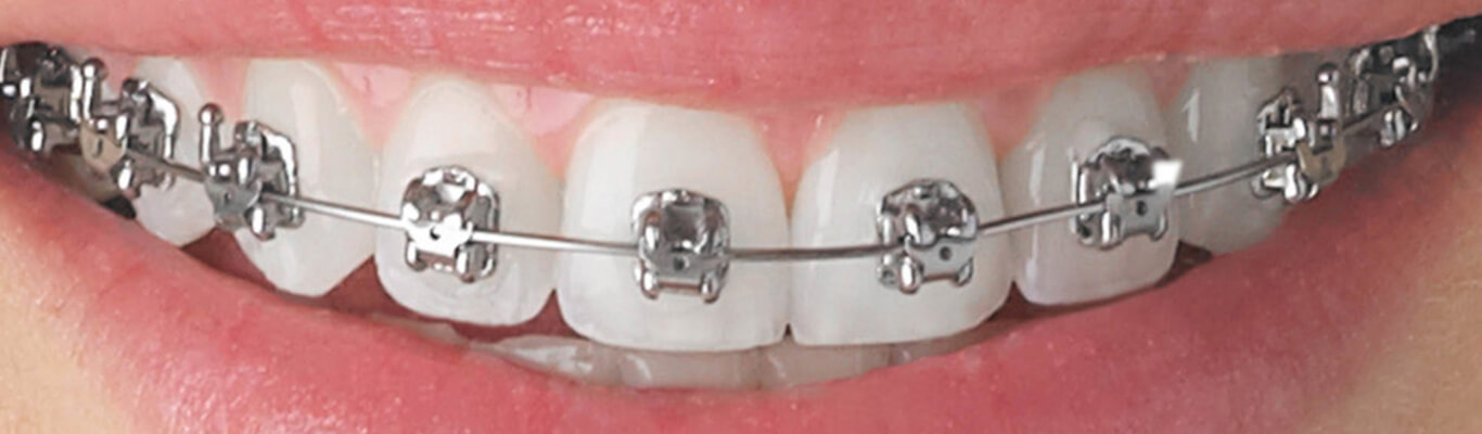 Braces Realign Your Teeth Through Routine Adjustments