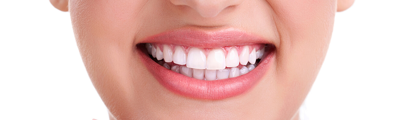 5 Reasons Why Having Whiter Smile Will Give You a Better Life
