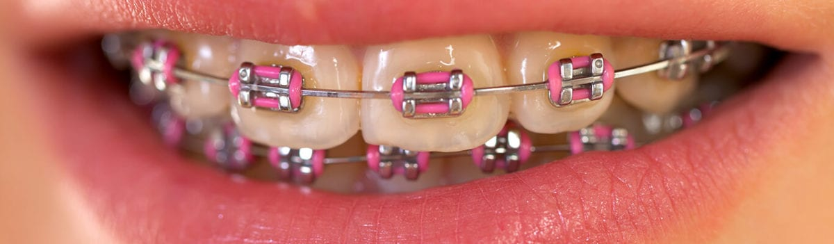 5ee017318 How to Mentally Prepare Your Child For Braces - A Dental Care
